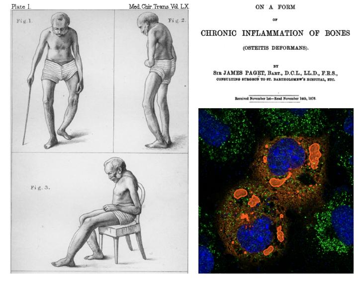 La genética en la medicina: enfermedad ósea de Paget, gen del Sequestosoma1 y epilepsia